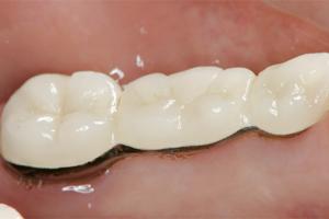 入れ歯に変わる治療…ブリッジ